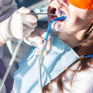 Un détartrage réalisé chez Dentéclair